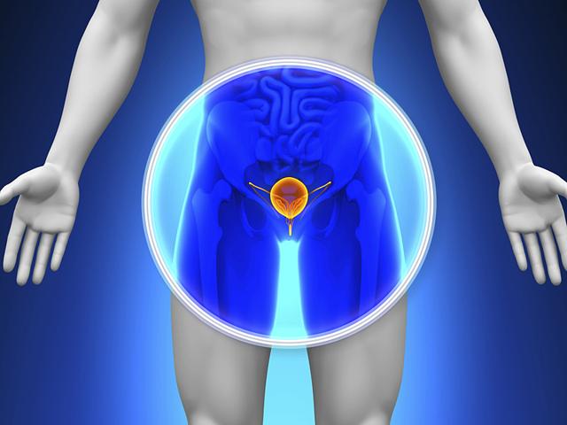 Рак простаты: причины, факторы риска и скрининг онкологии простаты