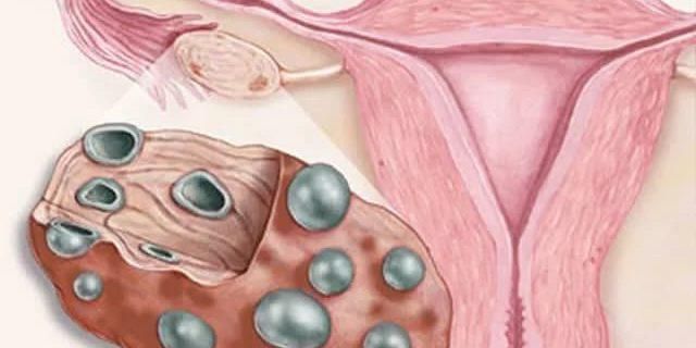 Причины и симптомы поликистоза яичников – все риски синдрома поликистозных яичников