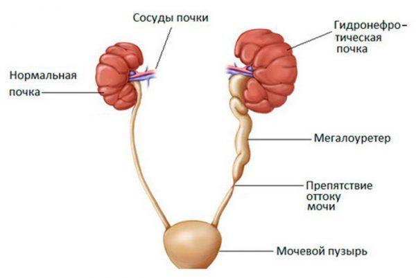 Виды гидронефроза почки – причины гидронефроза, признаки и симптомы