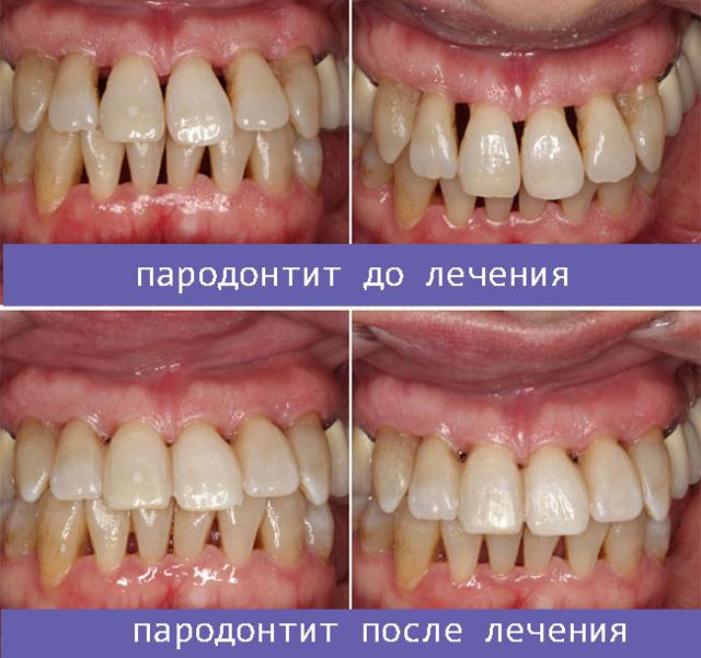 Лазерная стоматология – виды операций, плюсы и минусы лазерного лечения зубов и десен