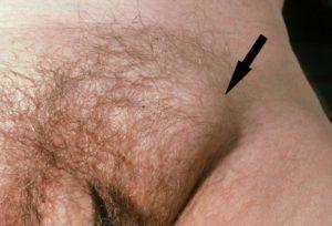 Увеличение паховых лимфоузлов - что может быть, если увеличились лимфоузлы в паху у женщин или мужчин?