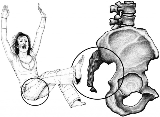 Перелом копчика у детей - как определить и лечить травму