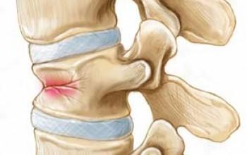 Смптомы перелома шейного отдела позвоночника, первая помощь и методы лечения