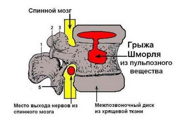 Надо ли лечить грыжу Шморля и как – симптомы и лечение грыжи Шморля