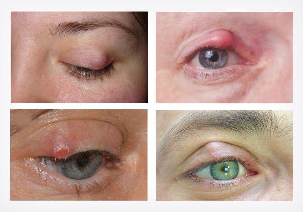 Халязион нижнего или верхнего века – причины возникновения и симптомы