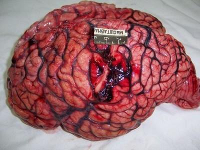 Лечение абсцесса мозга – когда необходима операция?