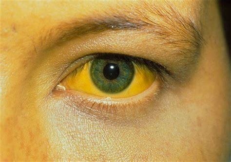 Анализ крови на гепатит – расшифровка результатов, отклонения и нормы