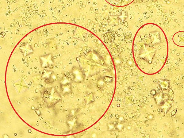 Лейкоциты, эритроциты, цилиндры, эпителий, соли, слизь, бактерии в моче – нормы и причины отклонения показателей в общем анализе мочи