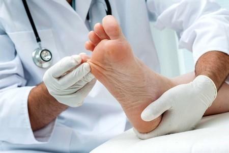 Хирургическое лечение гипергидроза - операции в лечении потливости