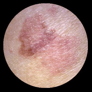 Симптомы, признаки рака кожи, диагностика - лечение онкологии кожи