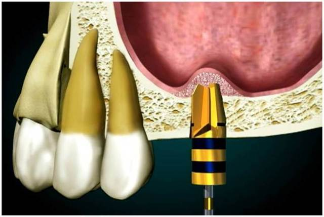 Методика открытого и закрытого синус-лифтинга при имплантации зубов – показания к операции и результат