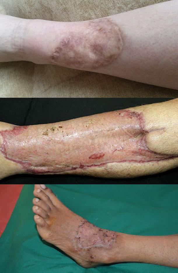 Пересадка кожи, как метод лечения ожоговой раны – этапы операции, заживление