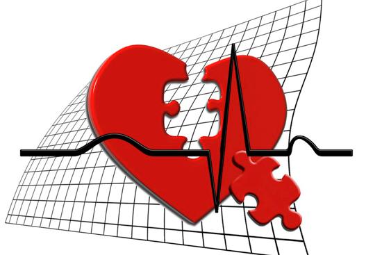 Диагностика и лечение дилатационной кардиомиопатии - прогноз при дилатационной кардиомиопатии