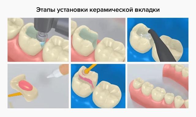Зубные вкладки – виды, стоимость и показания к применению зубных вкладок