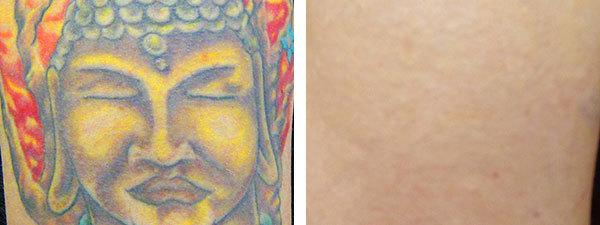 Удаление татуировки лазером – процедура и цена вопроса