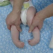 Виды врожденной и приобретенной косолапости – причины и симптомы косолапости