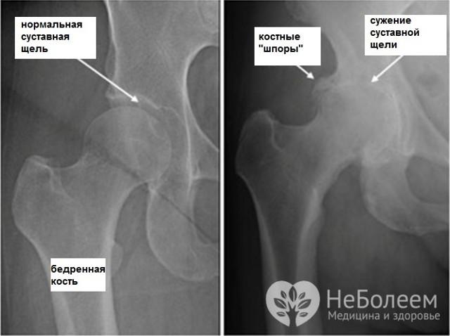 Болезни тазобедренного сустава и бедра - причины, симптомы, риски