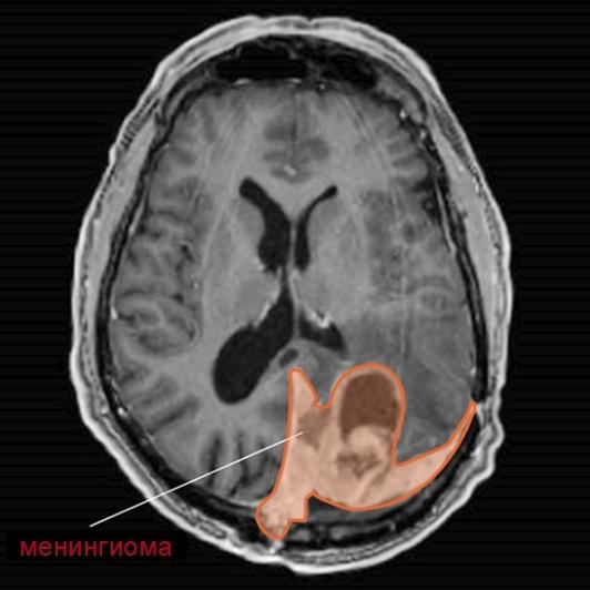 Менингиома головного мозга – причины, признаки и виды опухоли ГМ