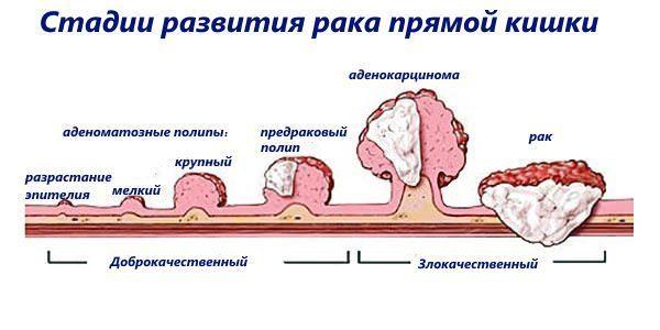 Где лечить рак прямой кишки – обзор онкологических центров Москвы и Санкт-Петербурга, цена на операцию
