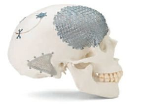 Краниопластика – виды пластики черепа и твердой мозговой оболочки, показания и противопоказания