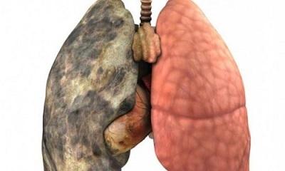 Абсцесс легкого – симптомы и методы лечения заболевания