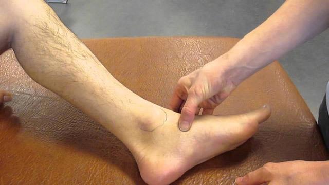 Лечение переломов лодыжки - открытая репозиция и внутренняя фиксация