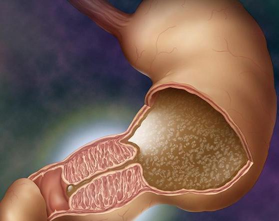 Стриктура пищевода - причины и симптомы, виды и степени сужения пищевода