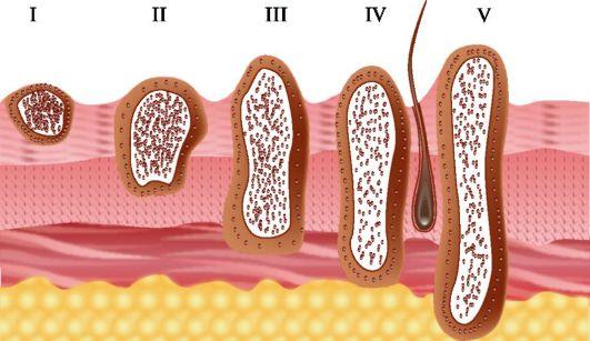 Базалиома – каковы симптомы этой разновидности рака кожи и какие варианты лечения существуют
