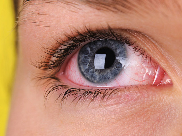 Кератит – виды, причины, симптомы и лечение воспаления глаза
