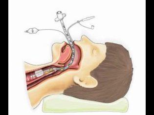 Общий наркоз при кесаревом сечении - плюсы и минусы, показкания