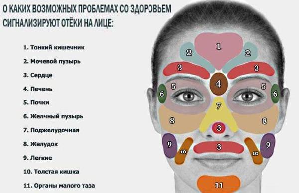 Отеки под глазами – причины и лечение препаратами и народными средствами
