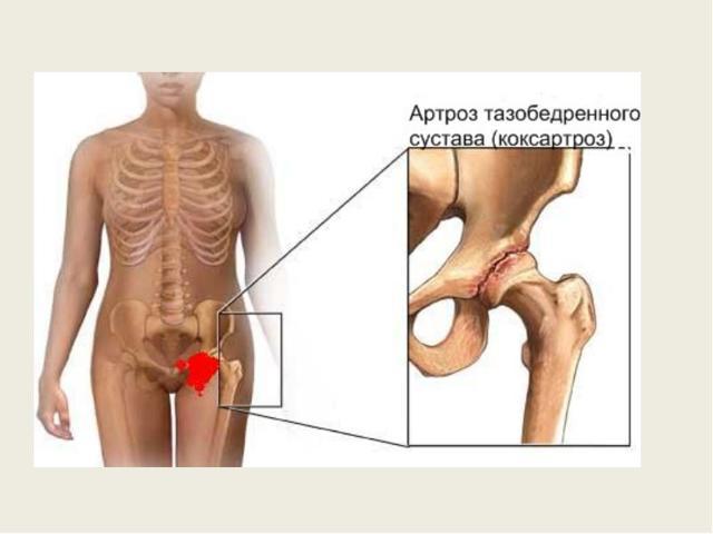 Артроз тазобедренного сустава – симптомы, диагностика и степени остеоартроза тазобедренного сустава