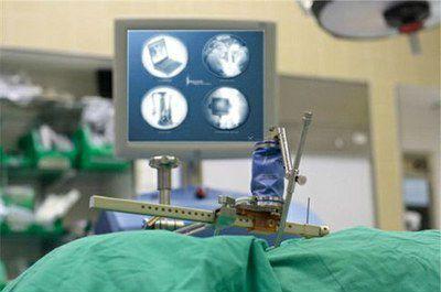 Современные малоинвазивные операции при межпозвоночной грыже