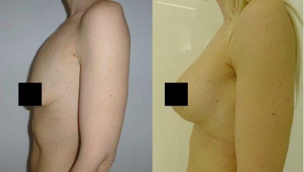 Причины тубулярной груди у женщин – пластика тубулярной формы груди
