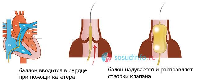 Причины и симптомы стеноза легочной артерии у детей и взрослых