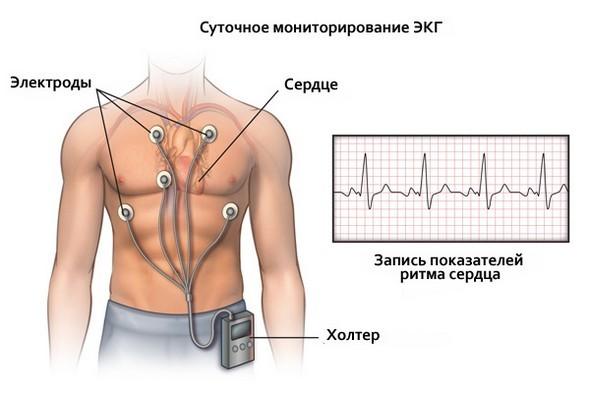 Виды и степени блокады сердца – причины и симптомы кардиоблокады