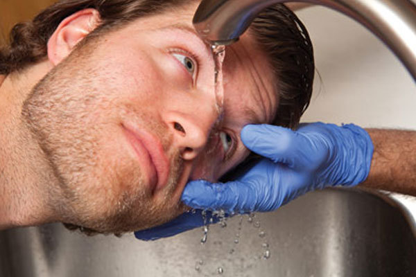 Причины ожогов глаз – степени ожоговой травмы глаза и первая помощь пострадавшему