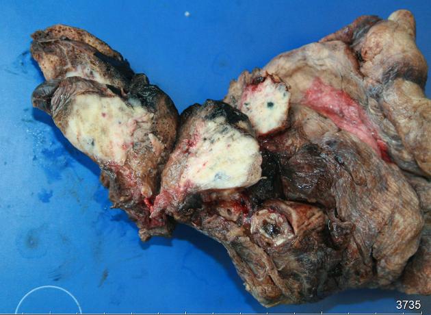 Использование 3d при минимально инвазивной хирургии легких