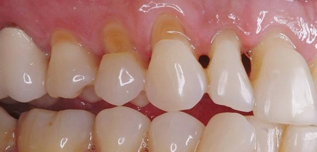 Лечение клиновидного дефекта зубов – причины клиновидного поражения зубов и последствия