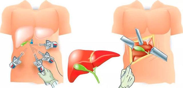 Открытая и лапароскопическая холецистэктомия – видео, показания, осложнения