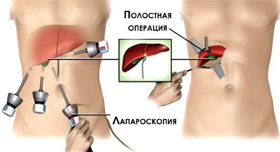 Лапароскопия у детей – плюсы и минусы операций, выполнение и результат