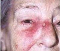 Виды и стадии рака кожи - причины, лечение и прогноз