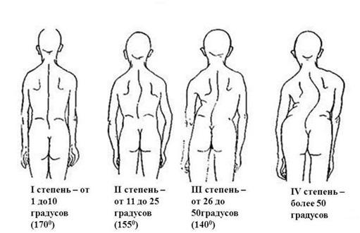 Виды и степени сколиоза в медицинской классификации – диагностика сколиоза