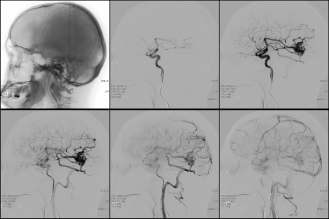 Лечение ангиомы головного мозга, показания к операции и прогноз