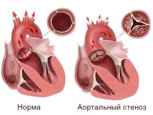 Аортальный стеноз: медикаментозные и хирургические методы лечения