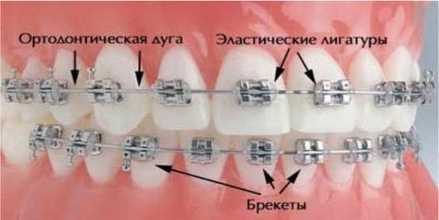 Что такое брекеты и какие виды брекет систем бывают – какие выбрать?