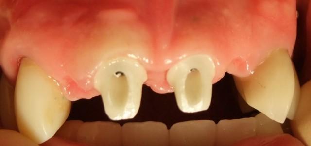 Имплантация и имланты передних зубов – как сделать зону улыбки привлекательной?