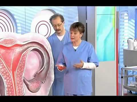 Лейкоплакия – характерные признаки поражения слизистых и лечение