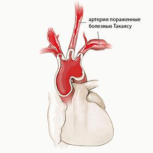 Причины неспецифического аортоартериита, или синдрома Такаясу – риски патологии дуги аорты