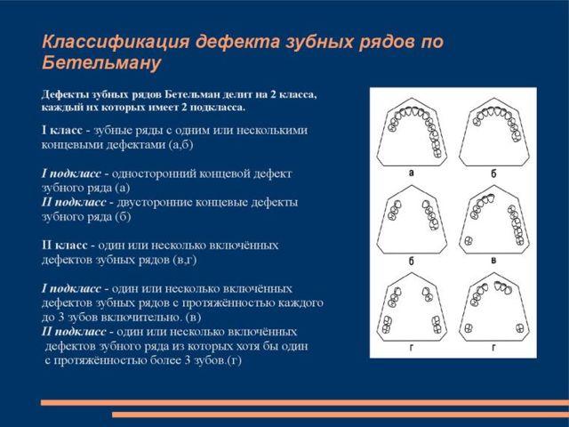 Классификации дефектов зубных рядов – методы лечения и восстановления зубного ряда